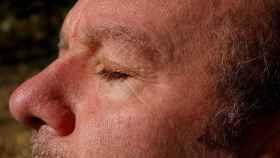 Buenas noticias: ¡Las manchas en la piel pueden desaparecer!