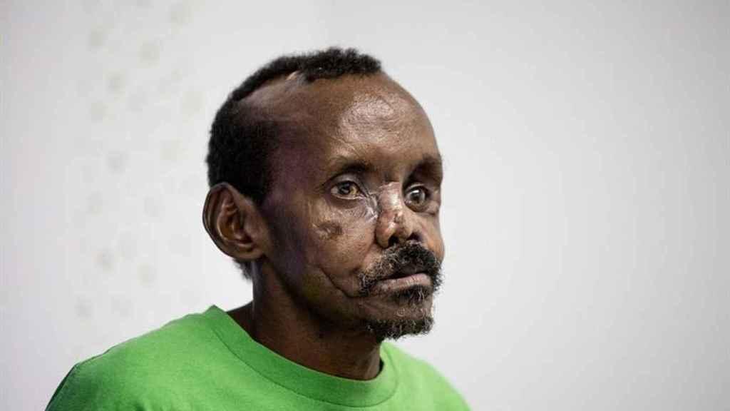 El pastor keniata Lonunuku, de 58 años, tras la reconstrucción parcial del rostro y la mano izquierda