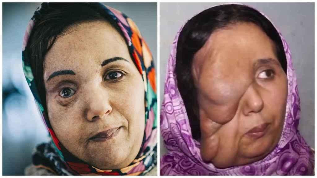 El ahora y el antes de Samira, que se ha puesto en manos del doctor Cavadas para que le extirpara el tumor que deformaba su rostro.