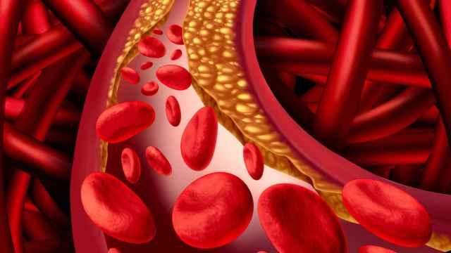 Representación de una arteria con colesterol adherido a las paredes.