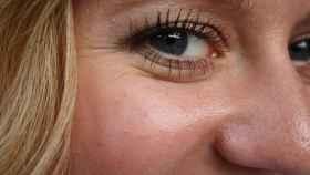 Tratamientos para el rejuvenecimiento de la cara