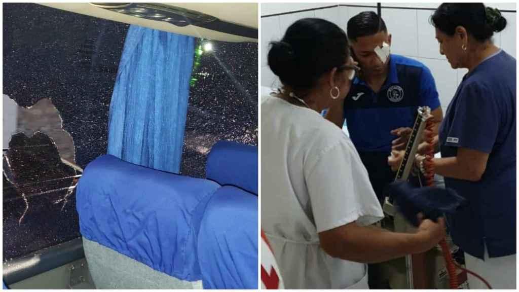 El terrible ataque al autobús del Motagua hondureño