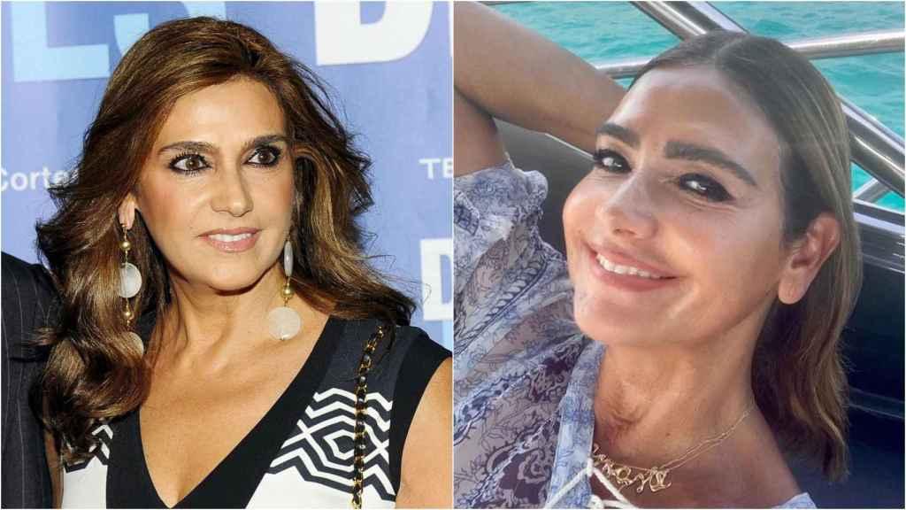 Marina Danko, antes y después de sus tratamientos estéticos.