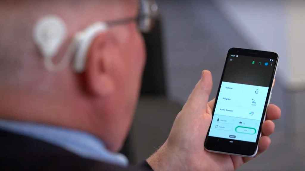 Implante coclear conectado a un smartphone.