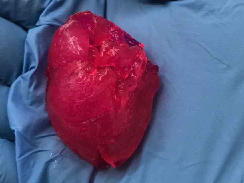 Corazón impreso en 3D