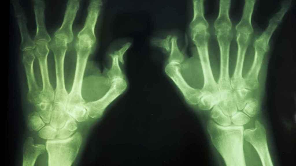 Las lesiones en las manos de una persona artrítica.