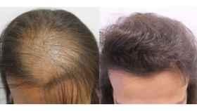 El 40% de las mujeres en España sufre alopecia y son el 30% de los clientes que se hacen operaciones de microinjertos.