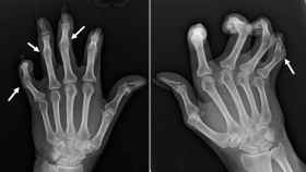 Radiografía de las manos de una enferma de artritis. Learningradiology.com