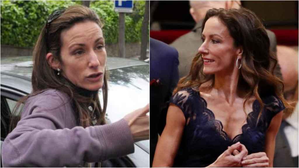 Telma Ortiz antes y después de sus retoques estéticos.
