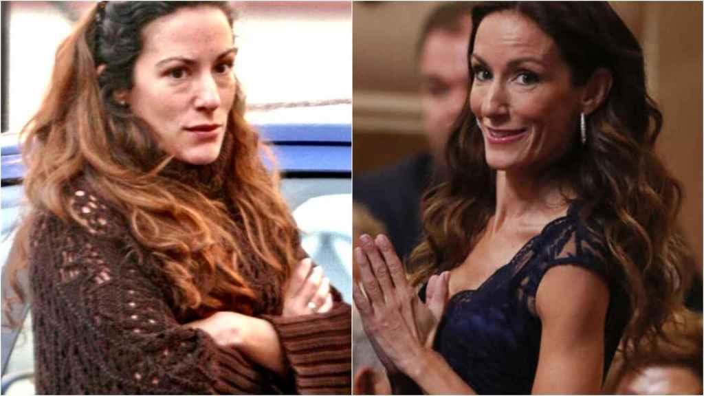 Telma Ortiz, antes y después de sus retoques estéticos.