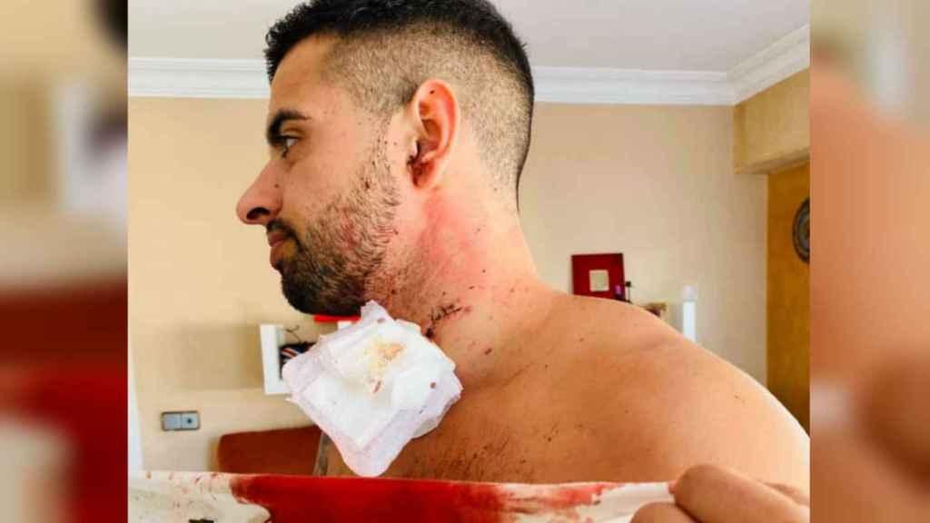 Juan Antonio muestra la herida en el cuello que le causó su agresor.
