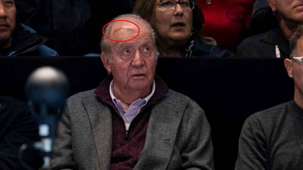 Detalle de la herida que luce Juan Carlos en la cabeza.