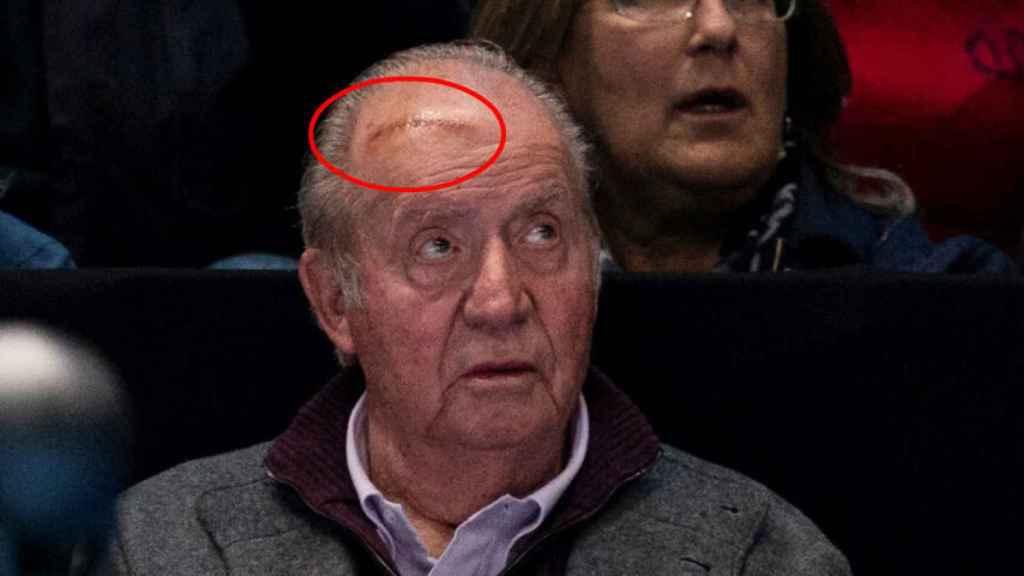 La brecha de Juan Carlos en Londres.
