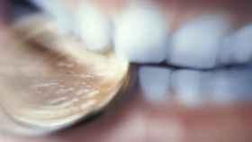 Las encías son esenciales para la buena salud.
