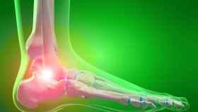 Un pie afectado por una enfermedad reumatológica.