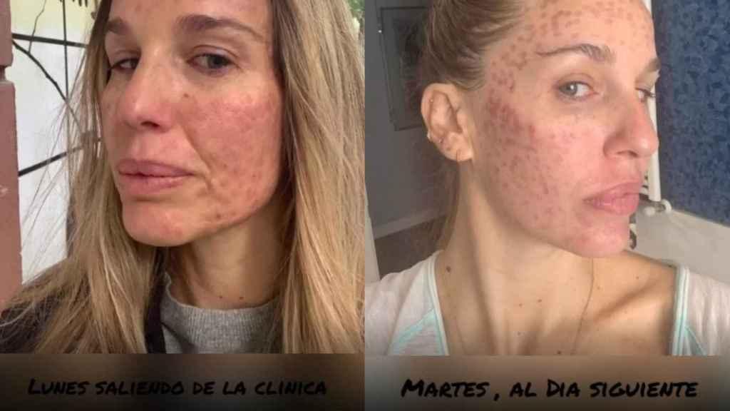 Carola ha mostrado cómo estaba su rostro al salir de la clínica y al día siguiente.