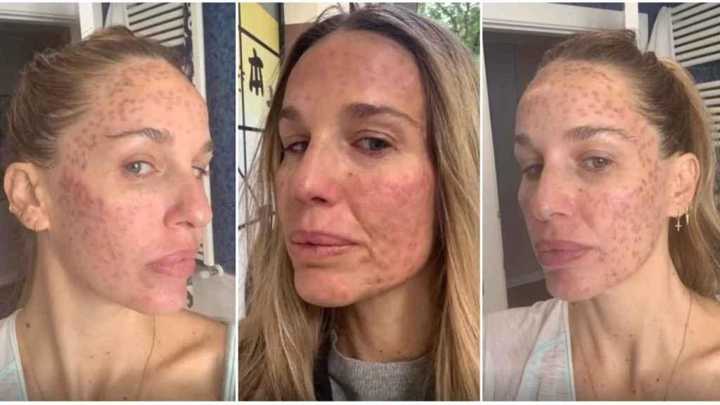 Carola Baleztena ha contado su experiencia con el láser facial ante sus seguidores.