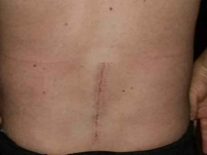 Secuelas de la lesión tras el accidente en la espalda del agente.