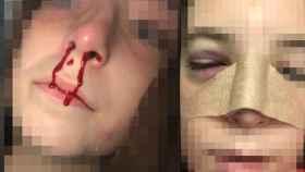La brutalidad del golpe fue tal que Blanca acabó con el tabique nasal fracturado.