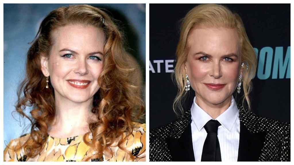 Nicole Kidman a comienzos del año 2.000 (izquierda) y en una imagen reciente (derecha).