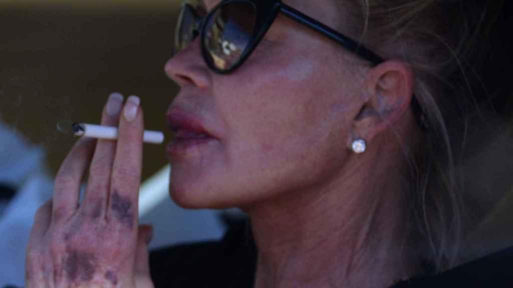 Melanie, en Hollywood con varios hematomas en sus manos.