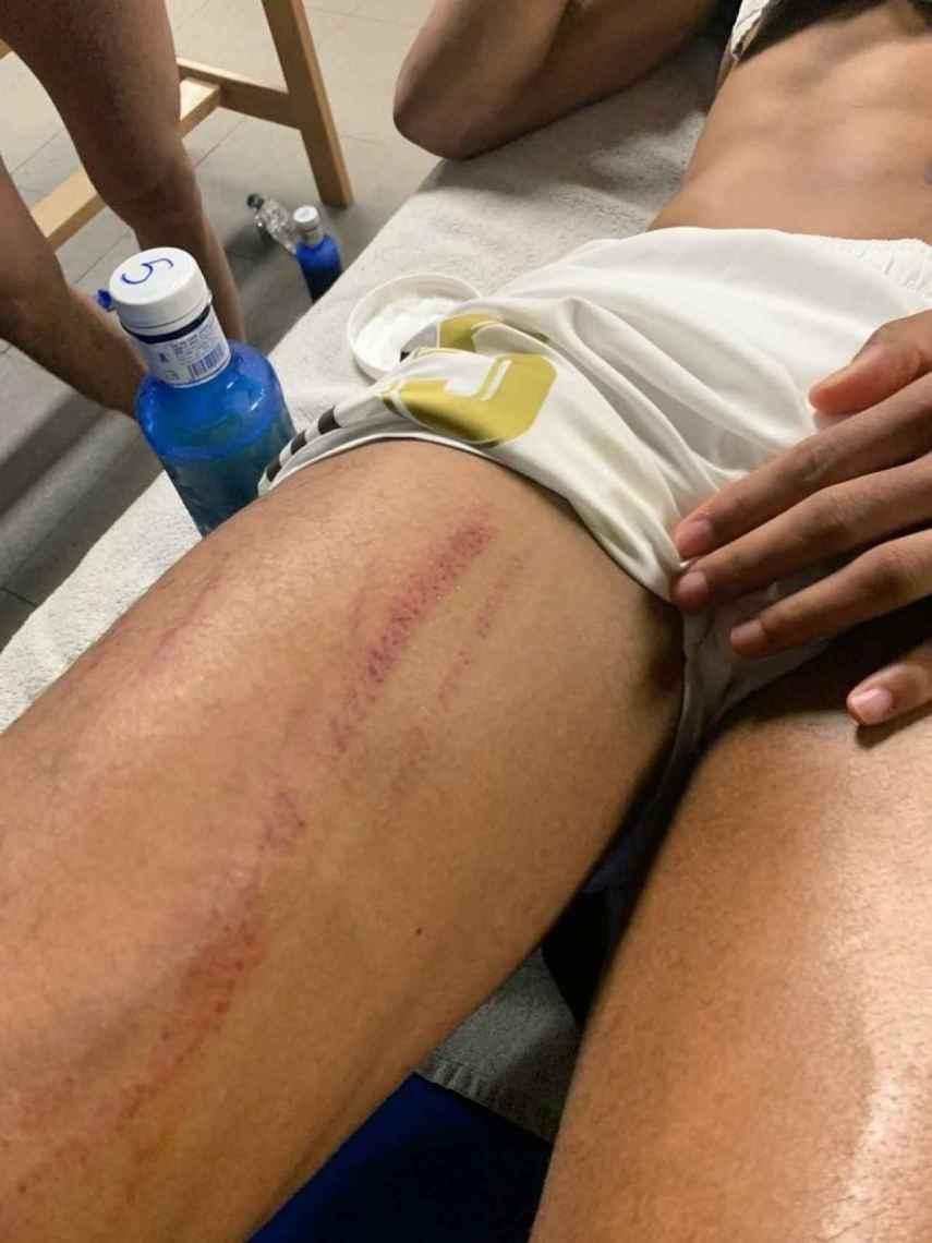 La herida en la pierna de Varane tras el partido