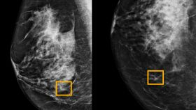 A yellow box indicates where an artificial intelligence (AI) system found cancer hiding inside breast tissue