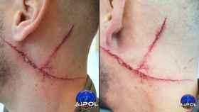 Heridas producidas al GEO de la Policía Nacional.