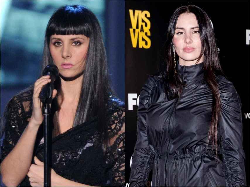 Mala Rodríguez, antes y después de sus tratamientos de cirugía estética.