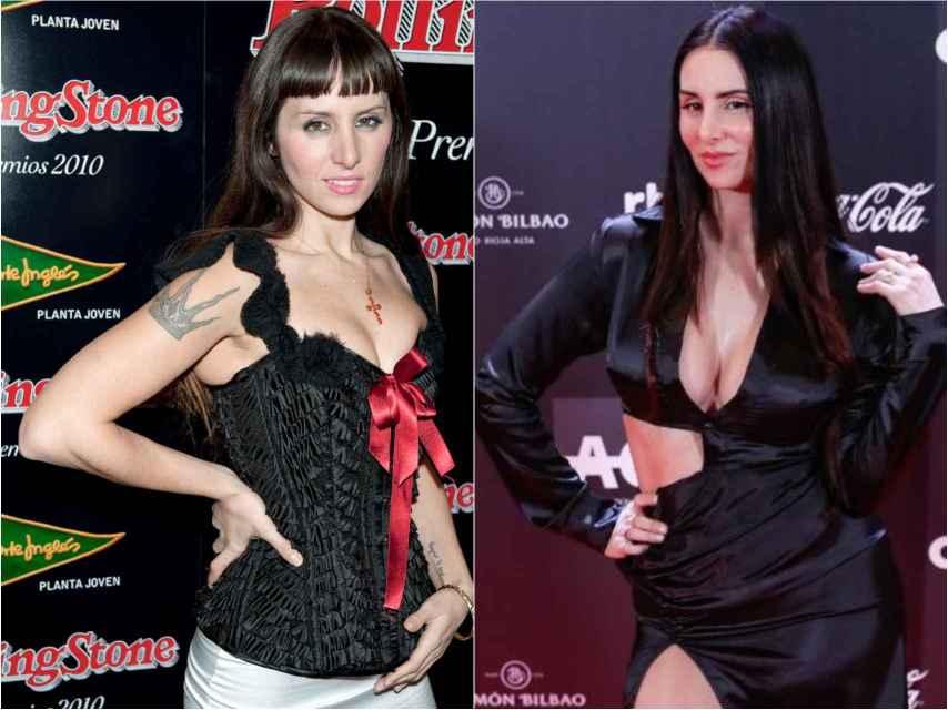 María Rodríguez 'La Mala' antes y después de sus retoques.