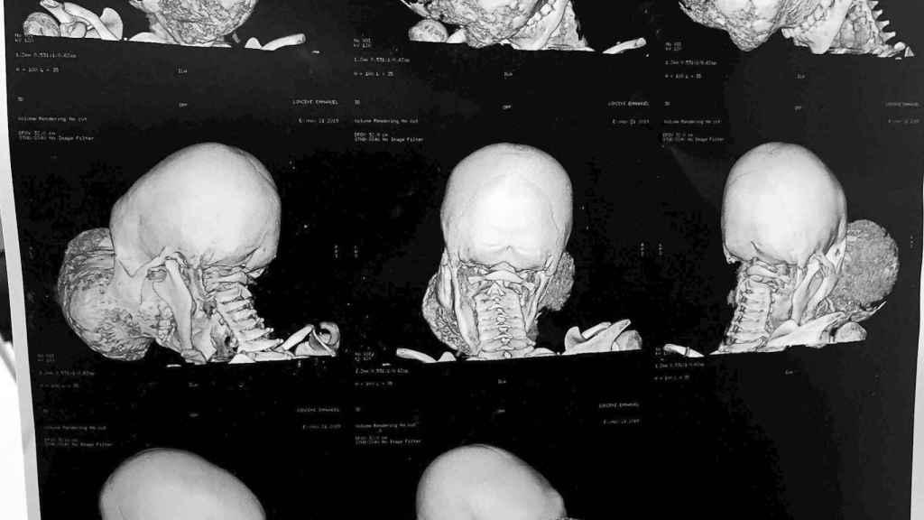 Un TAC con diferentes imágenes del tumor de Emmanuel antes de la intervención. EFE/Fundacion Pedro Cavadas