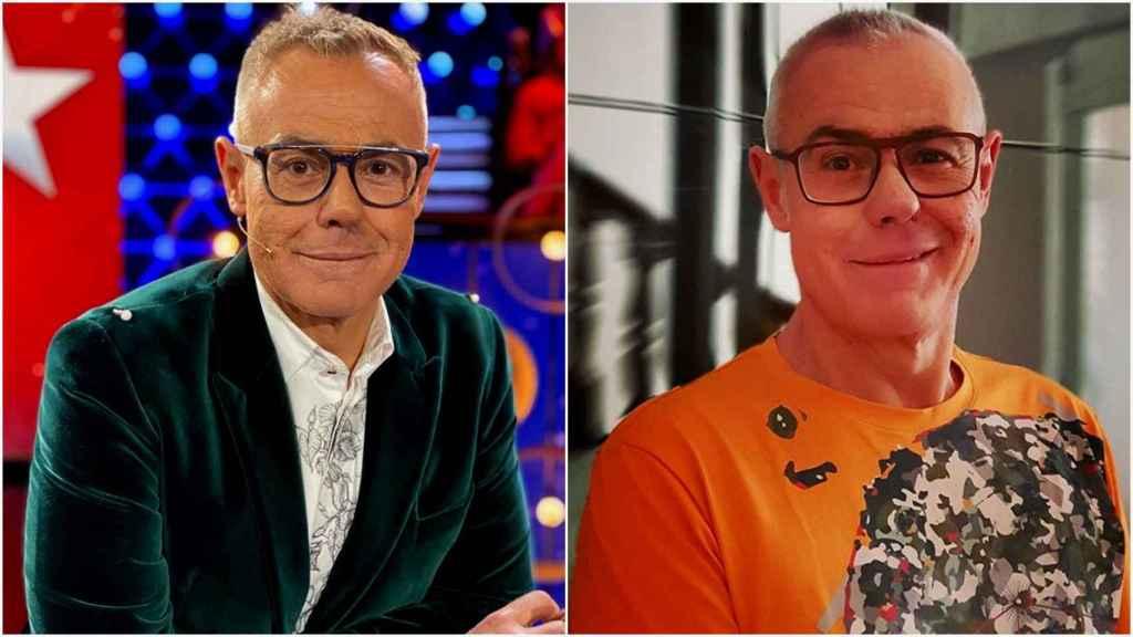 Jordi González, antes y después de su retoque estético.