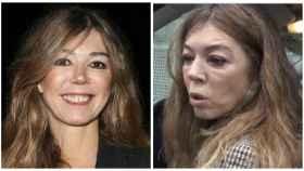 Eva Zaldívar en una comparativa de su antes y después.