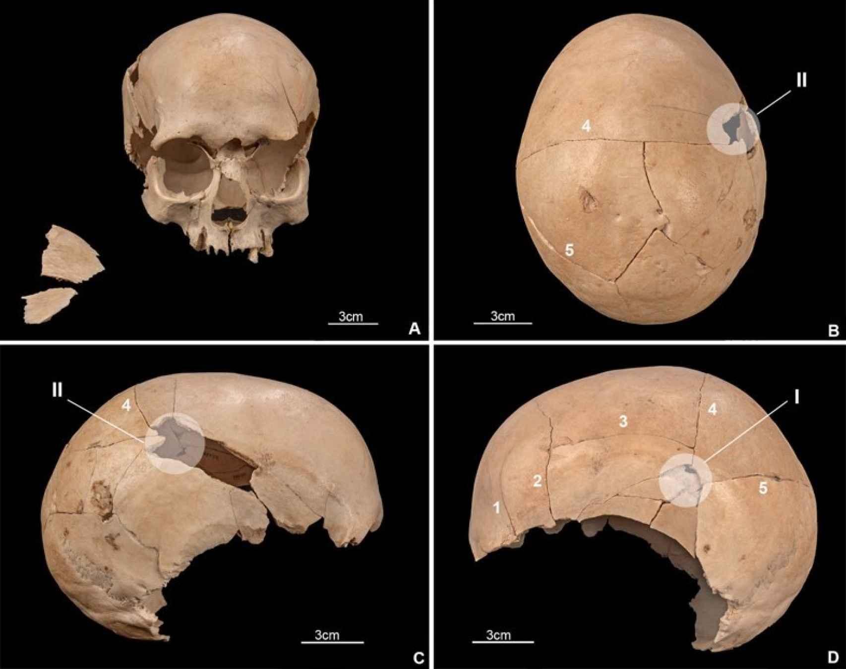 Uno de los cráneos que presentan impactos de flechas.