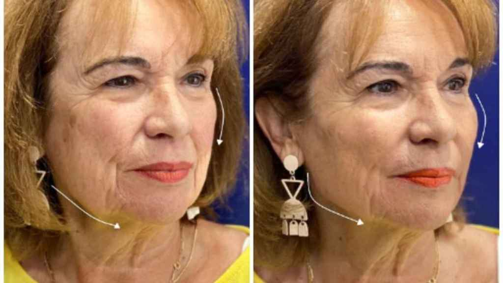 El doctor Ángel Martín ha creado este innovador tratamiento facial.