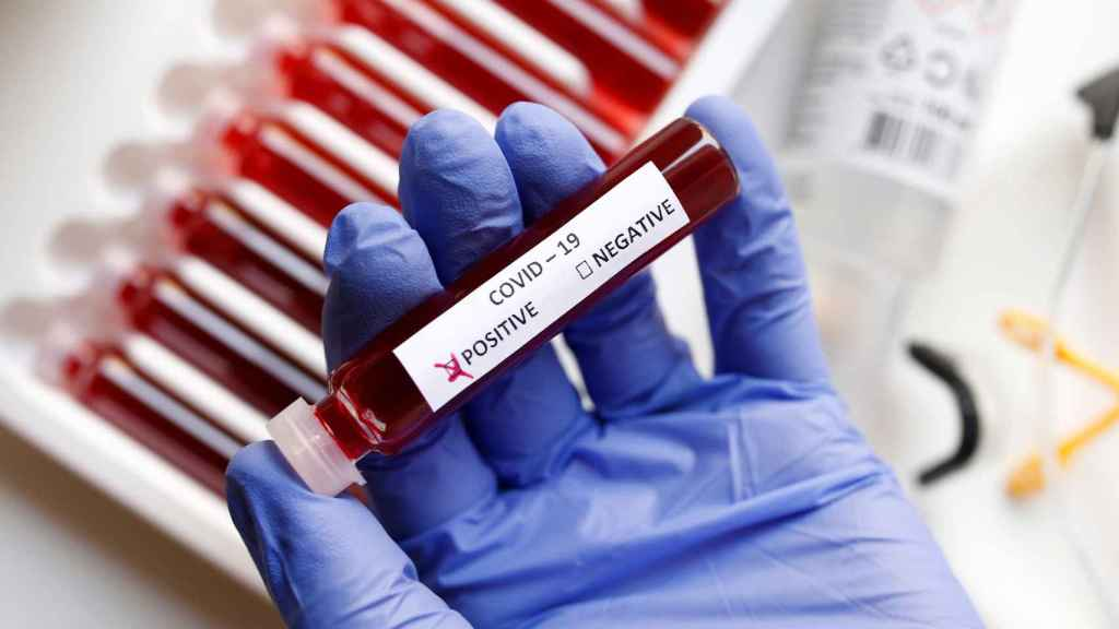 Test de detección en sangre del nuevo coronavirus.
