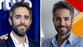 Roberto Leal en una comparativa de su antes y después.