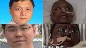 Arriba el doctor Yi Fan, y abajo el doctor Hu Weifeng, antes y después del tratamiento.