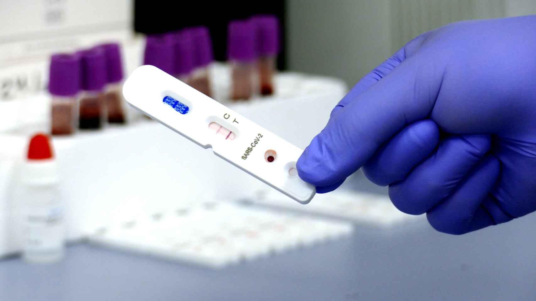 Una prueba para el diagnóstico de Covid-19.