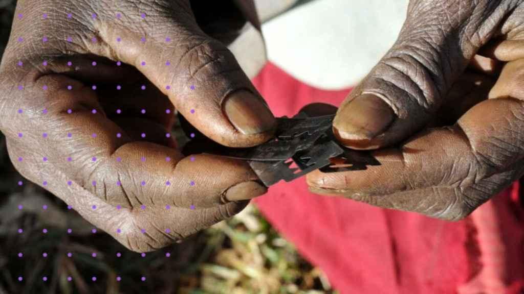 Una mujer sujetando las láminas con las que practica la ablación.