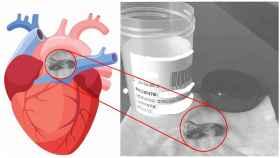El trozo de cemento de tres centímetros de largo por uno de ancho extraído de la arteria pulmonar derecha, junto al corazón.