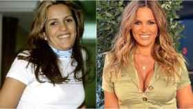 Marta López antes y después de sus retoques estéticos.