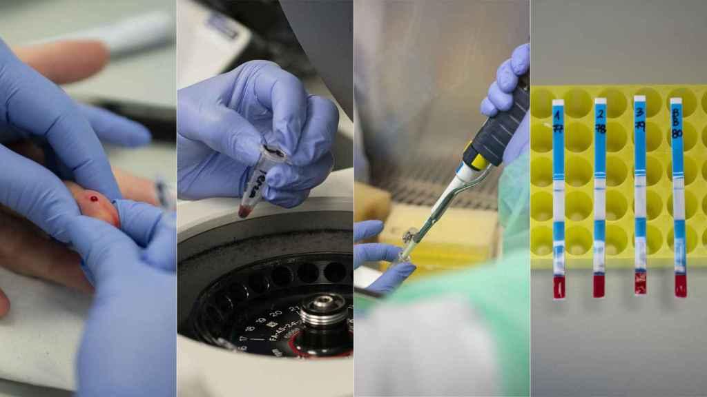 Distintos pasos en los dos test de anticuerpos 'made in Spain'.