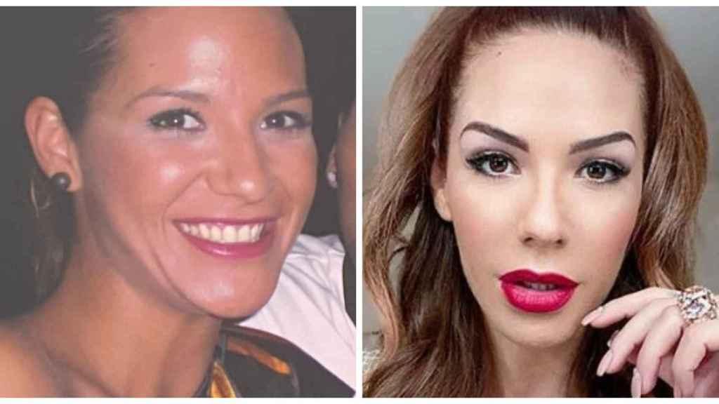 Tamara Gorro en una comparativa de su antes y después.