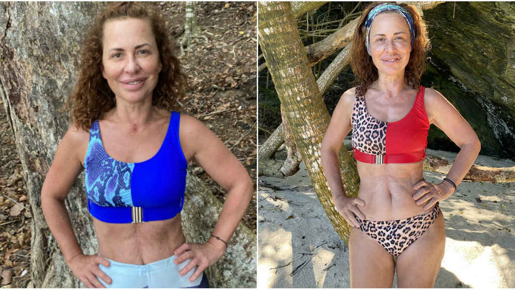 El antes y el después de Vicky Larraz.