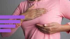 El cáncer de mama tiene una curación de más del 85%.