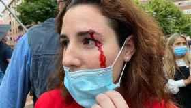 La diputada Rocío de Meer, herida tras recibir una pedrada en Sestao.