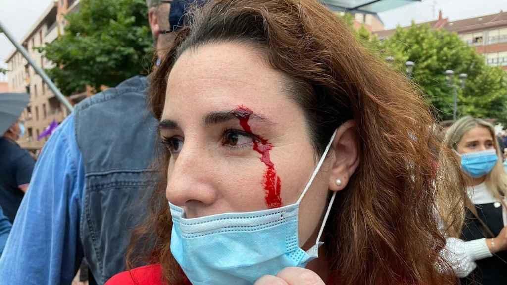 La diputada Rocío de Meer, herida tras recibir una pedrada en Sestao. Vox