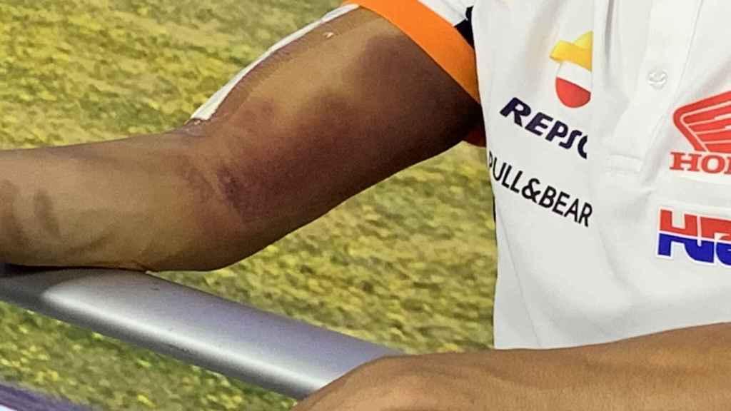 La imagen del brazo de Marc Márquez que le ha impedido correr el Gran Premio de Andalucía