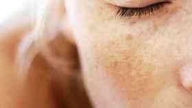 Este es el novedoso tratamiento que combate y frena el melasma del rostro